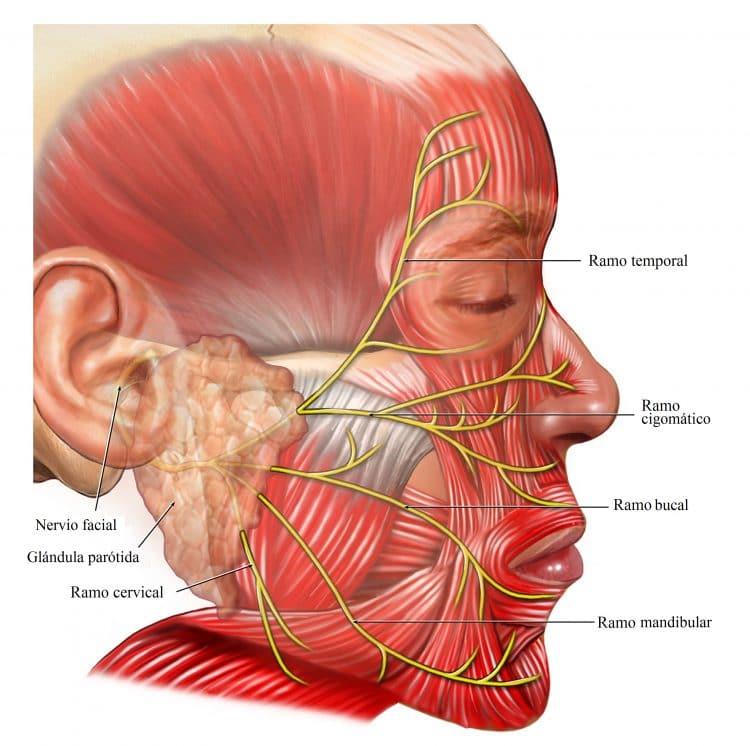 aneurisma, ictus, síntomas, hemorragia cerebral