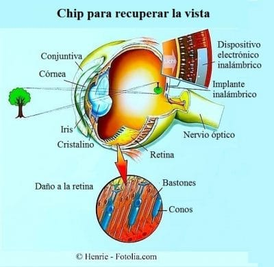 prótesis retiniana, dispositivo, wireless, implante, ojo, retinosis