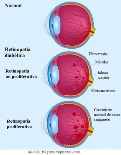 retinopatía diabética, neovascularización vasos retiniales