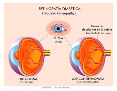 Retinopatía diabética, ojo