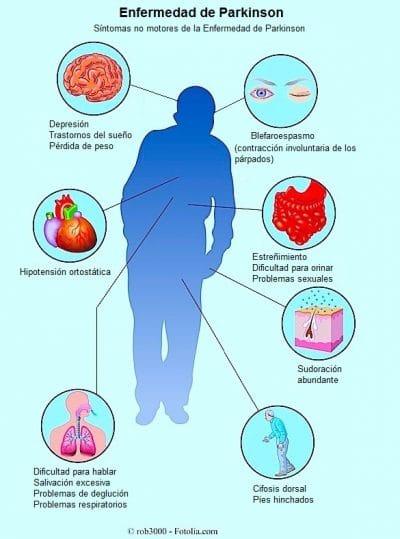 sintomas no motores Parkinson
