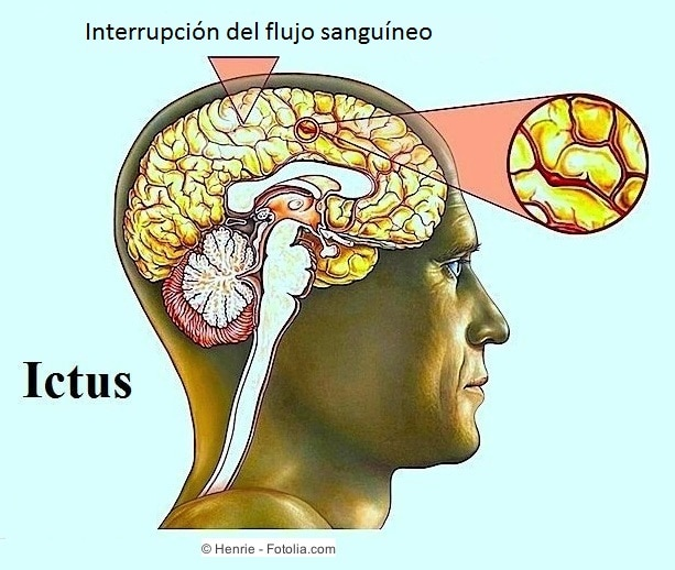 interrupcion del flujo sanguineo