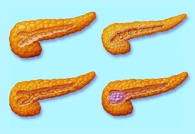 tumor de páncreas, estadio, IV