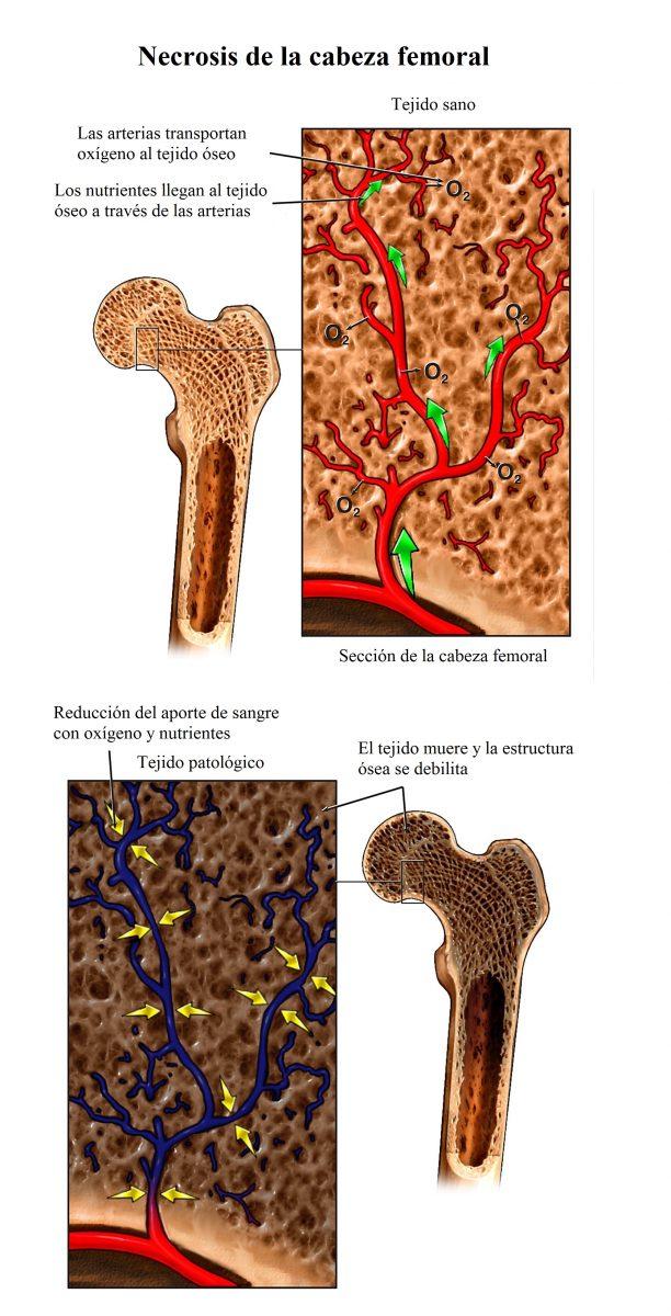 necrosis de la cabeza del fémur