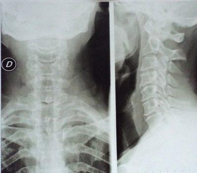 Rx, Radiografía, cervical, artrosis, osteofitos, reducción, articulación