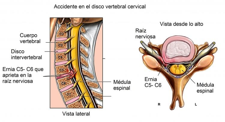 accidente en el disco vertebral cervical