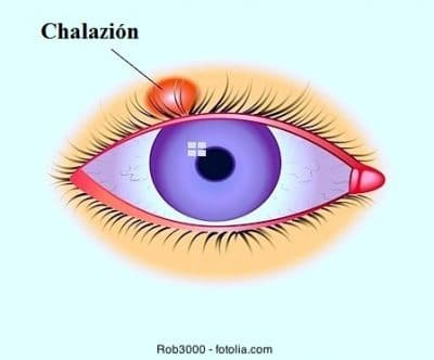Chalazion