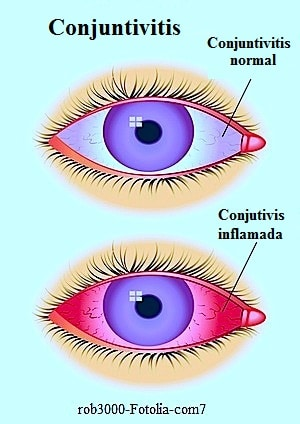 Conjuntivitis, normal, inflamada