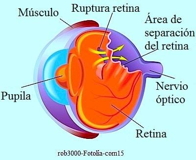 desprendimiento de retina, vítreo, visión, manchas, rélampagos