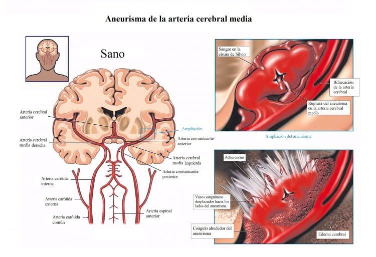 aneurisma de la arteria cerebral media