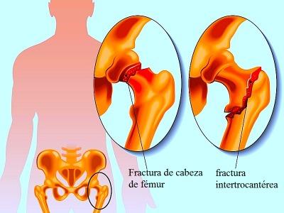 Fractura, cadera, fémur, dolor, apoyo, cuello, cabeza