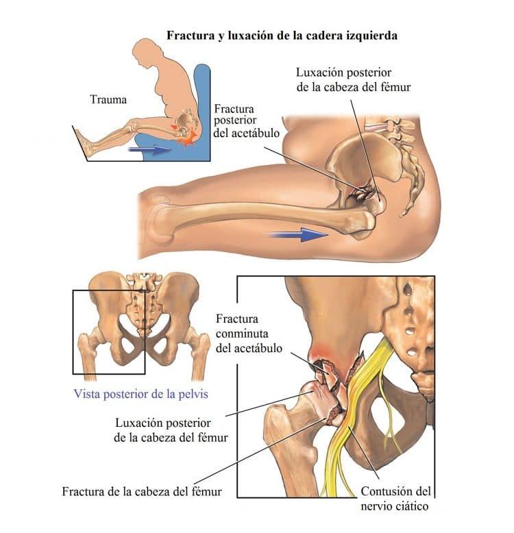 Magnífico Anatomía De La Zona De La Cadera Foto - Imágenes de ...