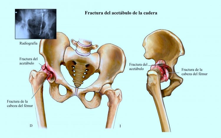 Dolor de cadera, artrosis, ingle, pierna, huesos, músculos, bursitis ...