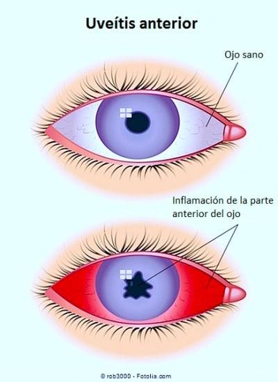 uveitis anterior