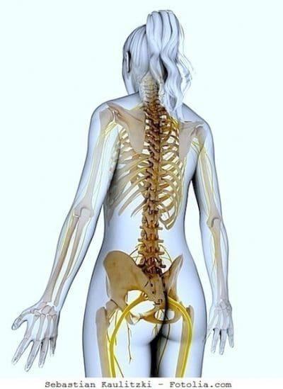 esclerosis múltiple, pruebas, nervios, médula espinal