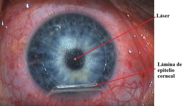 Láser, Lasik, operación, ojo