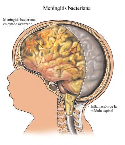 Meningitis, dolor en el cuello, nuca, rigidez