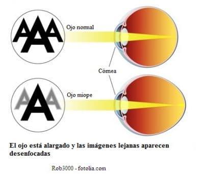 Miopía a los ojos y láser