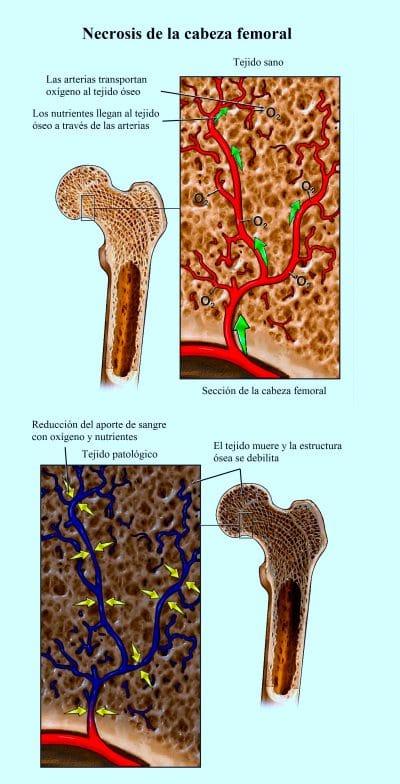 necrosis de la cabeza femoral