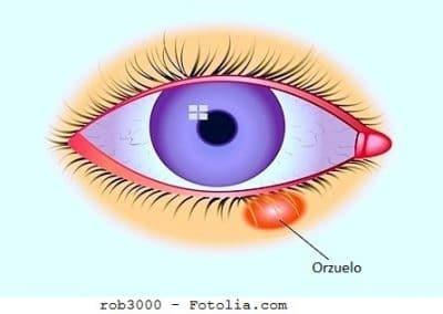 orzuelo, ojo