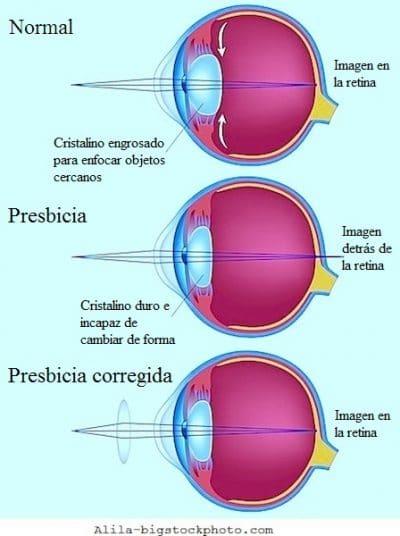 Presbicia, lentes, anteojos, gafas, enforcar