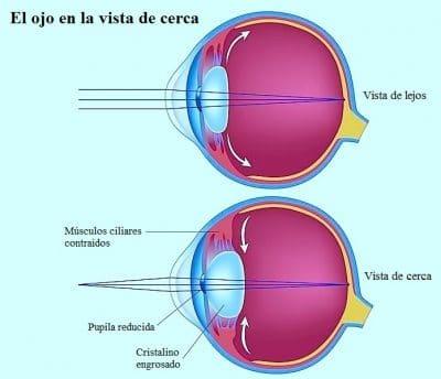 Presbicia, miopía, hipermetropía y astigmatismo