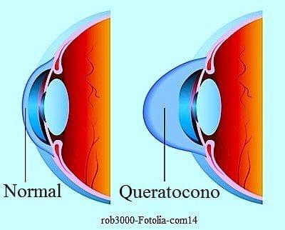 El queratocono de la córnea en el ojo