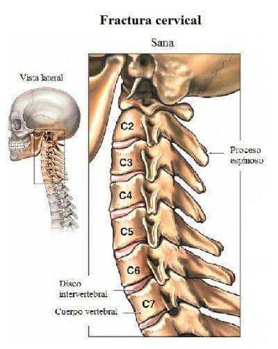 Vértebras del cuello, cervical, nuca