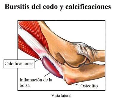 bursitis del codo, calcificaciones