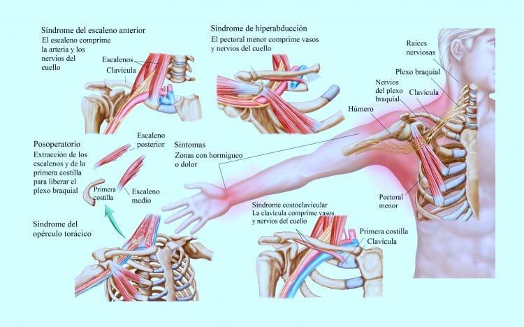 Dolor en el brazo, izquierdo, derecho, causas, muscular, mujer y hombro