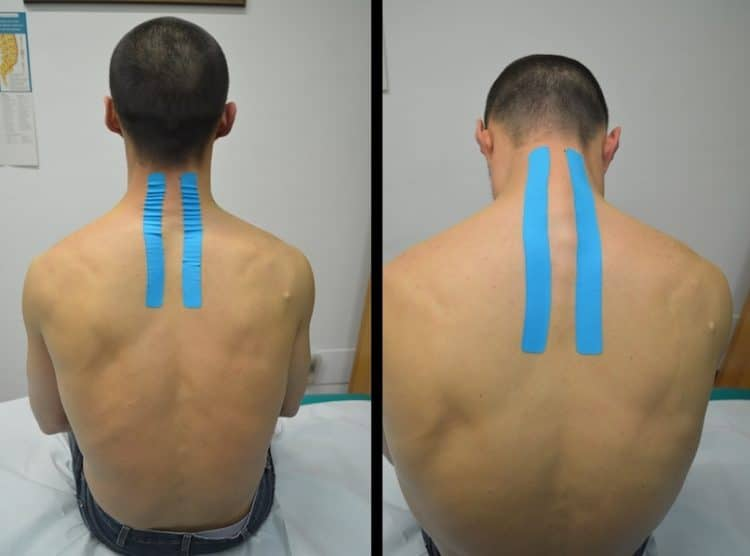 Kinesio tape, cuello, cervical