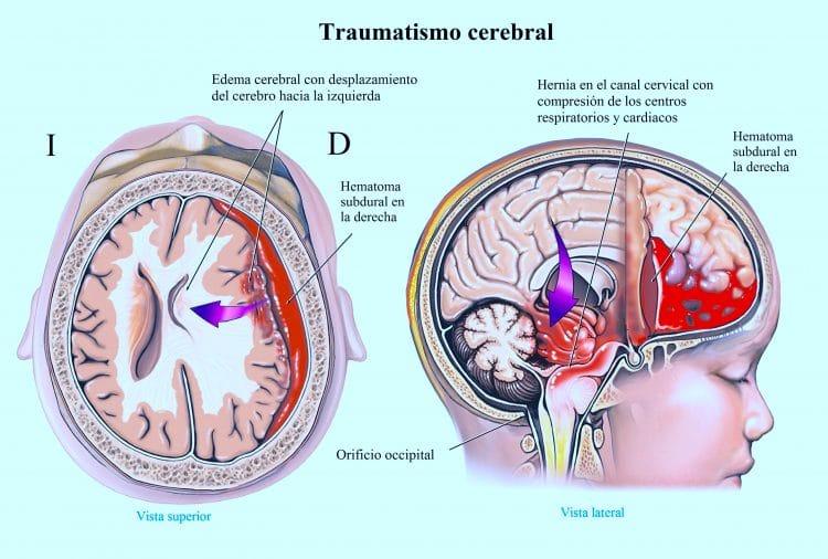 traumatismo-cerebral