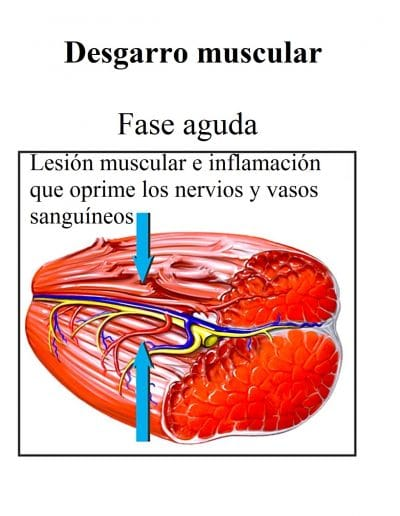 lesion muscular