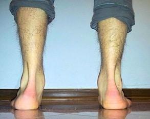 Etiquetas. pronación, supinación, pronador, pie, hueco, plano