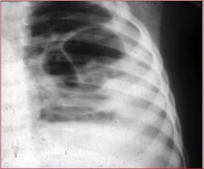 Densificación pulmonar en la radiografía por neumonía lobar
