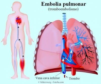 embolia pulmonar, tromboembolismo