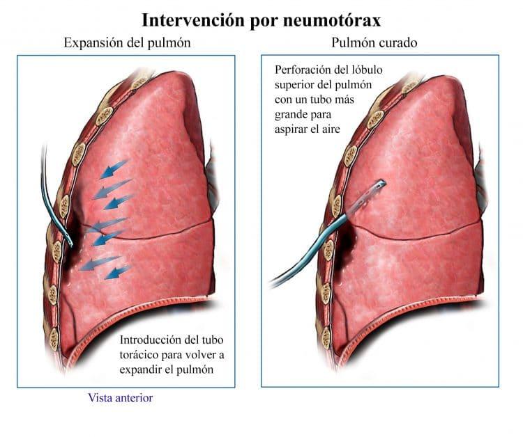 intervencion por neumotorax