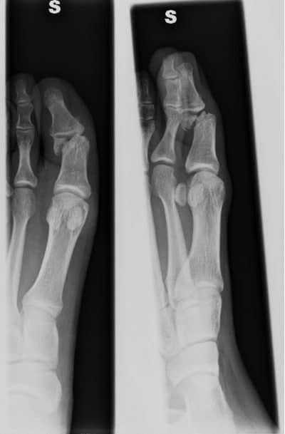Dislocación, fractura, dedo gordo del pie, dolor