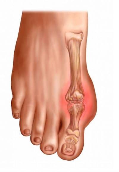 dedo gordo del pie hinchado y rojo