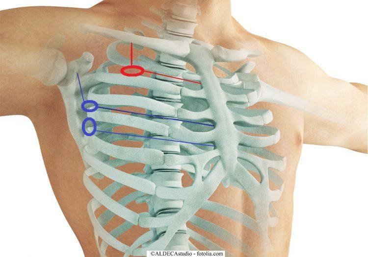 Acceso,drenaje, quirúrgico, tórax