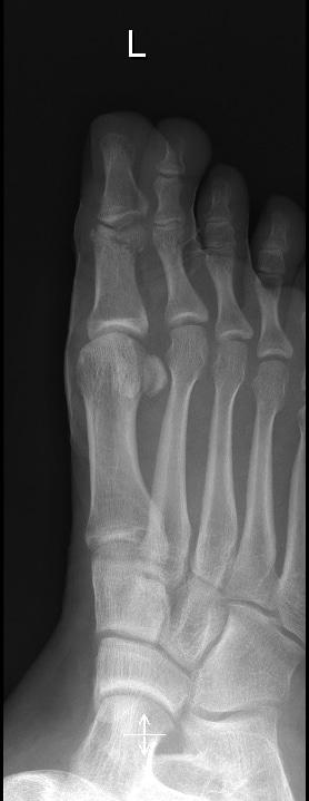 Fractura dedo gordo, radiografía, reducida