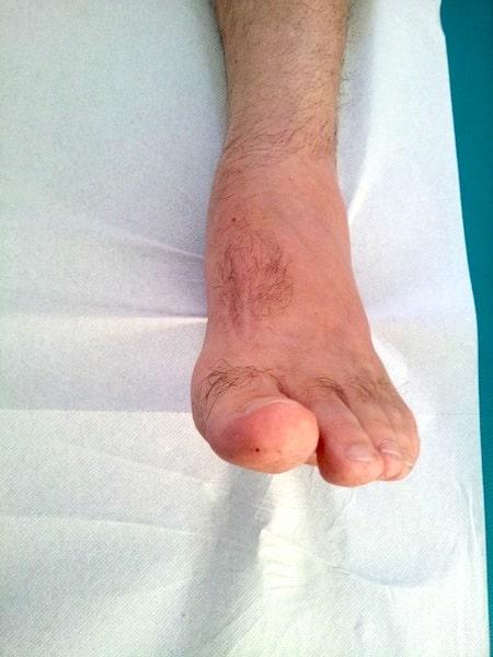 tobillos hinchados de pie durante largos períodos