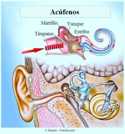 Causas de los acúfenos en el oído