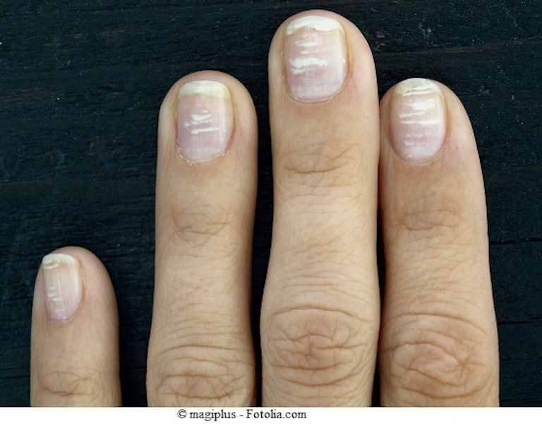 Manchas blancas en las uñas de manos y pies, en niños, vitaminas ...
