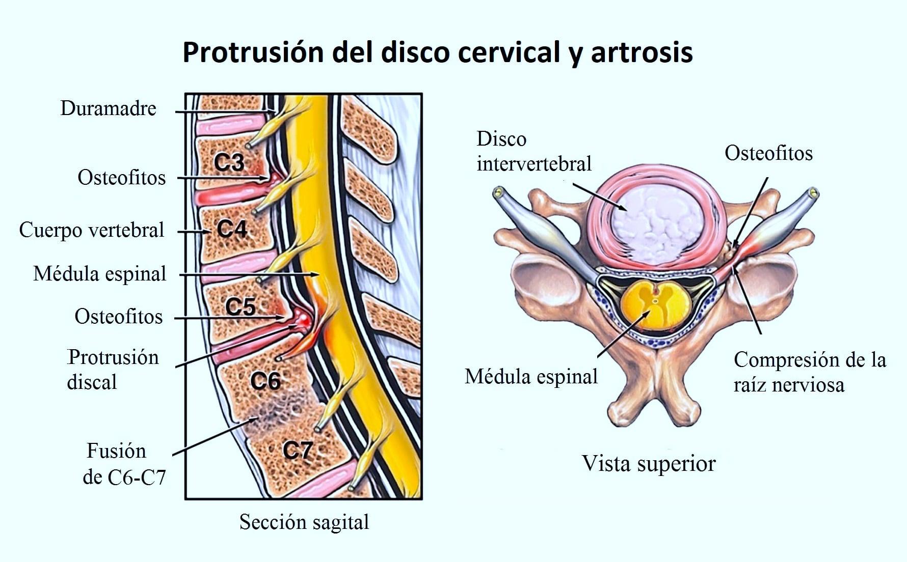 Artosis cervical, vértigo