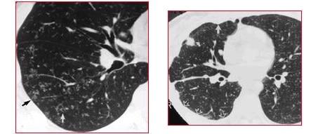 tuberculosis miliar, tac, tuberculomas