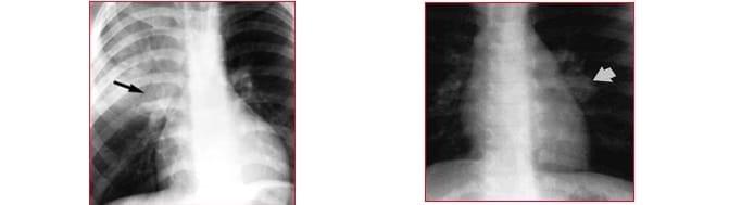radiografía, tuberculosis, ápex izquierdo
