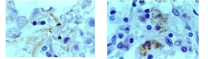 tuberculosis, exámenes de laboratorio, microbacterias