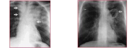 tuberculosis, radiografía, ganglios linfáticos hinchados