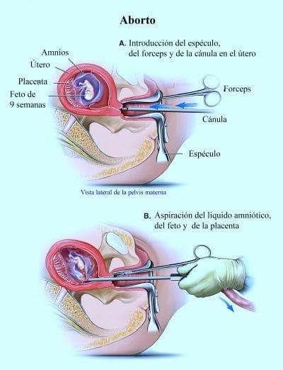 S ntomas del aborto p ldora quir rgico provocado bioquimico primer mes fisioterapia para - Aborto primer mes ...
